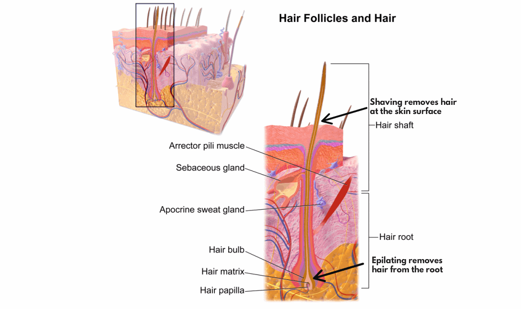 epilating removes hair from the root